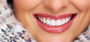 Porcelain Veneers | Dr. Canter | Anaheim, CA Dentist
