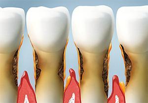 Periodontal Disease   Dr. Canter   Dentist Buena Park CA