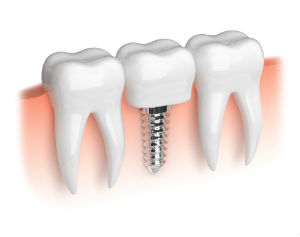Dental Implants | Dr. Canter | La Habra CA Dentist