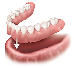 Dentures | Dr. Canter | Anaheim, cA Dentist